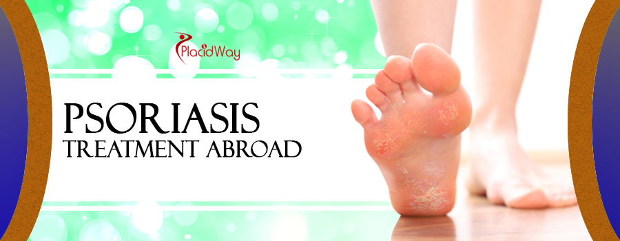 Psoriasis Treatment Abroad