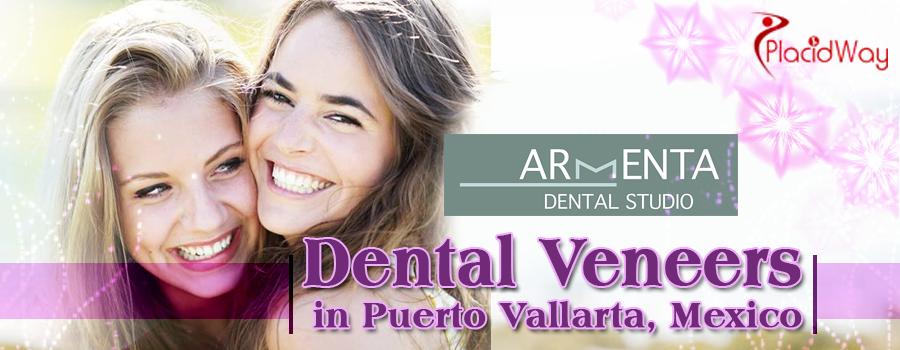 Dental Veneers in Puerto Vallarta, Mexico