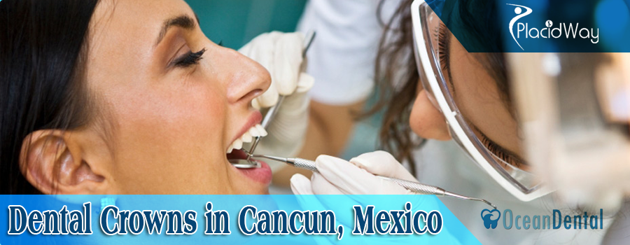 Dental Crowns Cancun