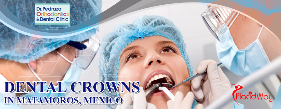 Dental Crowns in Matamoros, Mexico