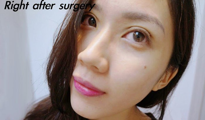 Scarless Double Eyelid Surgery in Singapore, Patient Testimonial