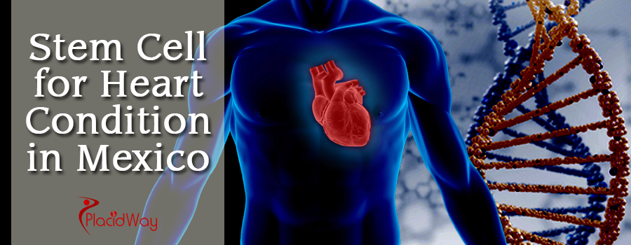 Stem Cell Therapy for Heart Condition in Mexico