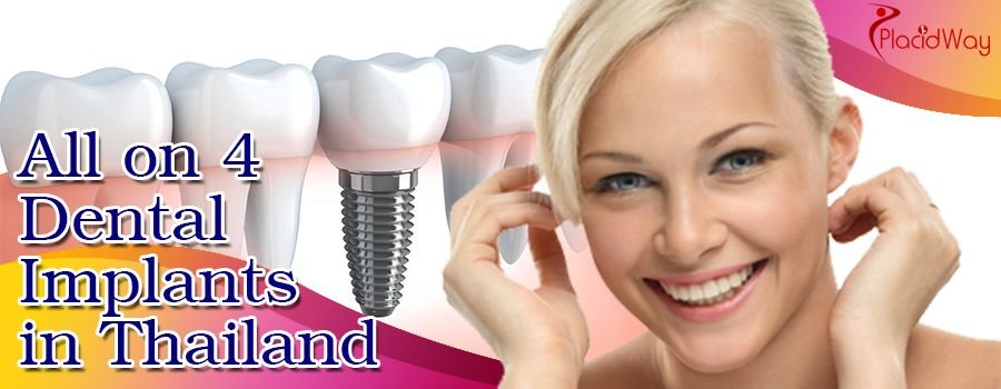 Best All on 4 Dental Implants in Thailand