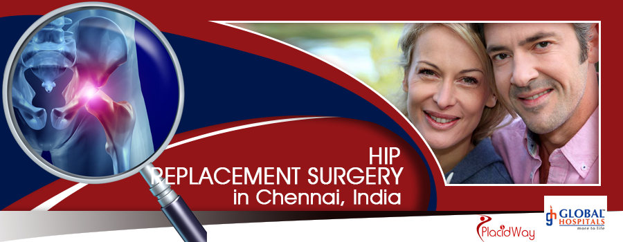 Hip Replacement Package in Chennai