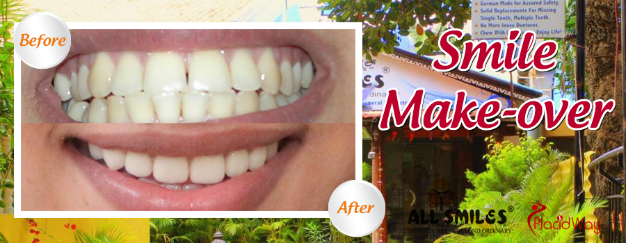 Before and After Smile Makeover in India