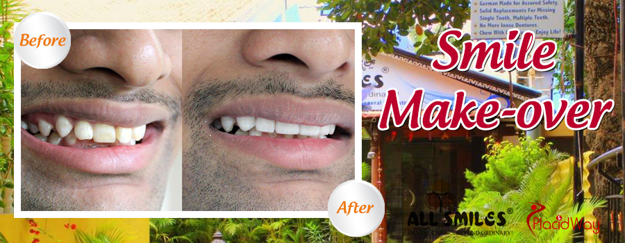 Before and After Cosmetic Dentistry India