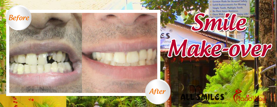 Smile MakeOver Before and After All Smile Dental Clinic, India