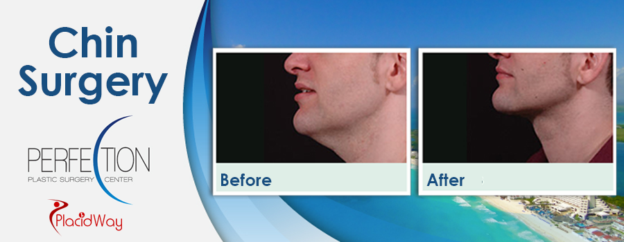 Before and After Chin Surgery in Mexico