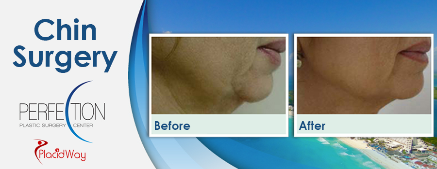 Patient Testimonials Chin Surgery in Cancun, Mexico