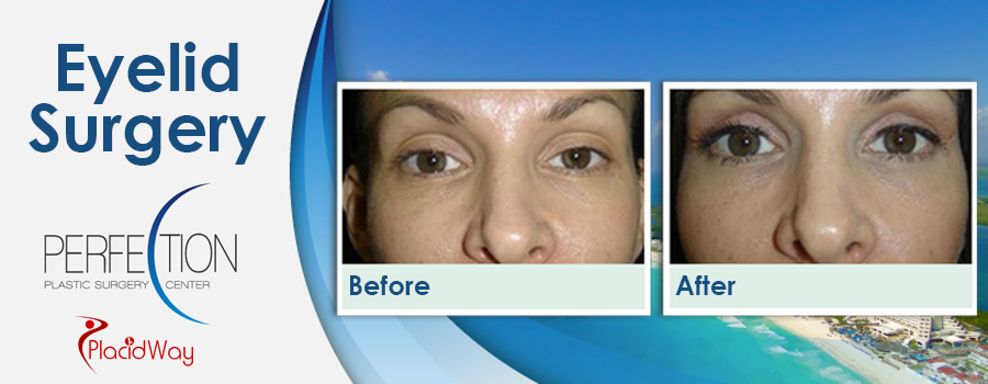 Before and After Eyelid Surgery in Mexico