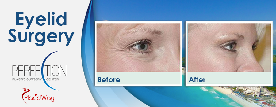 Patient Testimonials Eyelid Surgery in Cancun, Mexico