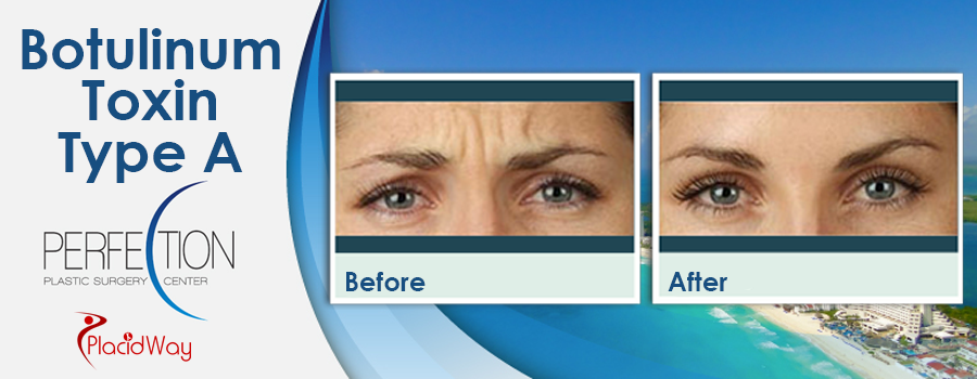 Before and After Botulinum Toxin Type A in Mexico