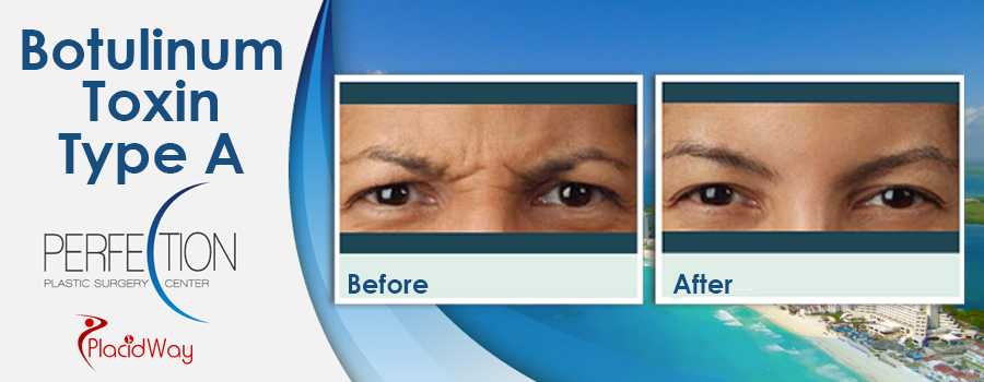 Before and After Cosmetic Procedure in Cancun Mexico