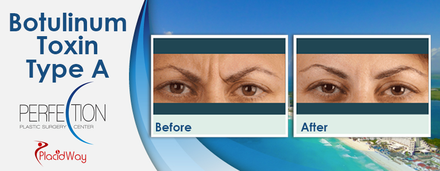 Patient Testimonials Botulinum Toxin Type A in Cancun, Mexico