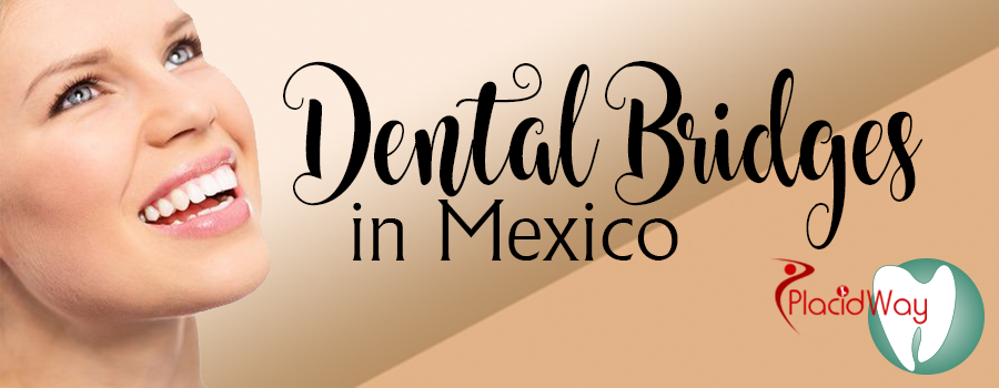 Affordable Dental Bridges Packages in Mexico