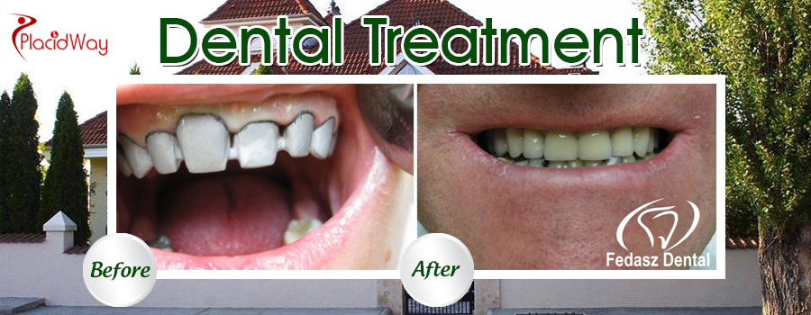 Before and After DentalTreatment in Hungary