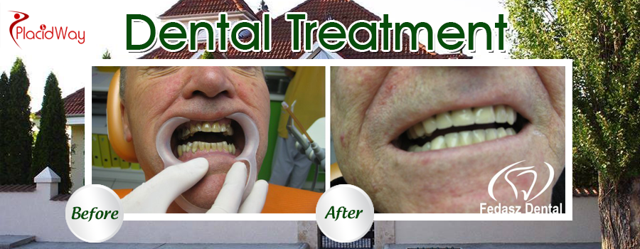 Fedasz Dental Clinic Budapest Cosmetic Dentistry Before and After