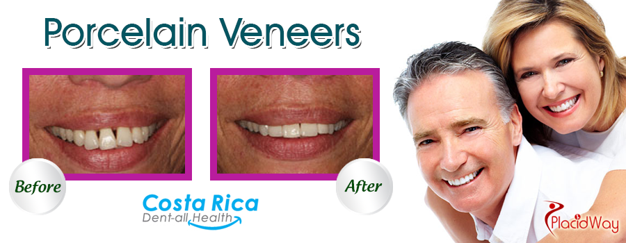Before and After Porcelain Veneers in Costa Rica