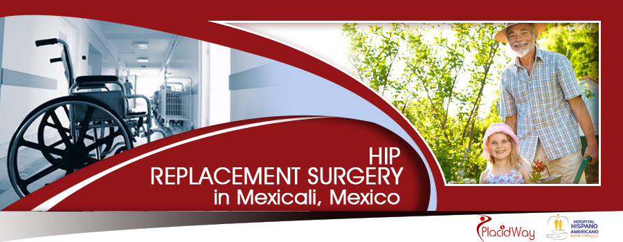 Hip Replacement Package in Mexicali Mexico