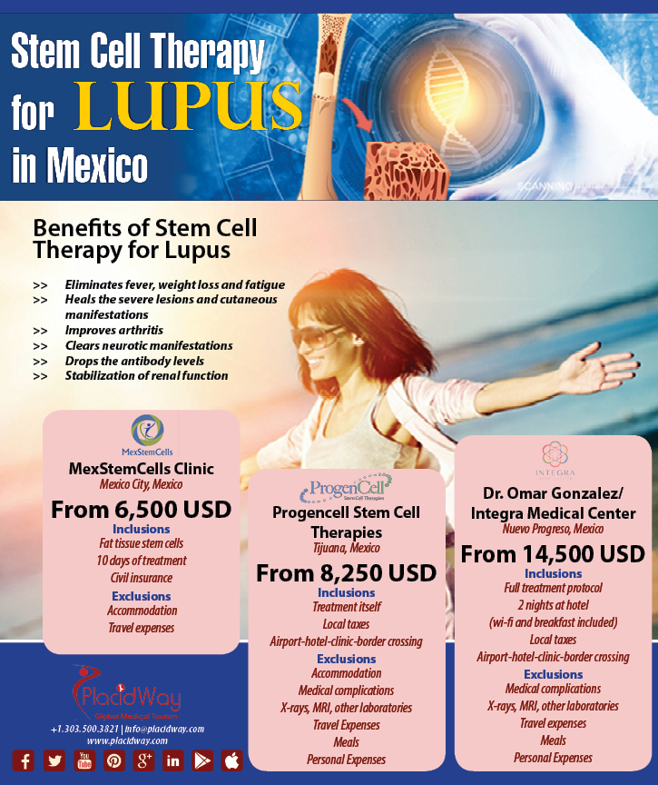 Infographics: Stem Cell Therapy for Lupus in Mexico