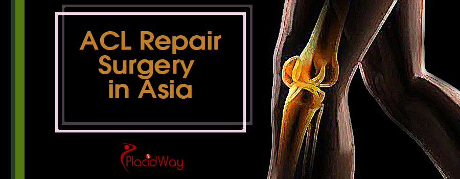 Affordable ACL Surgery Options in Asia