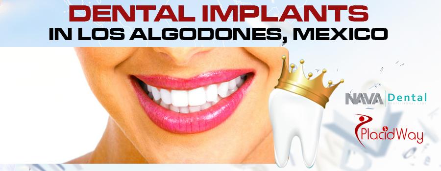 Dental Implants Package in Los Algodones, Mexico