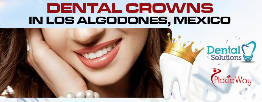 Dental Crowns Package in Los Algodones, Mexico