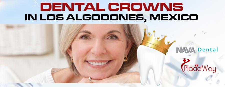 Top Dental Crowns Package in Los Algodones, Mexico