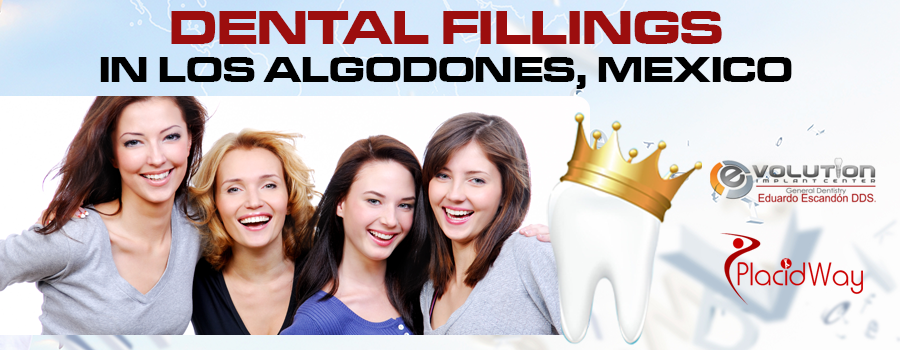 Top Quality Dental Fillings Package in Los Algodones, Mexico
