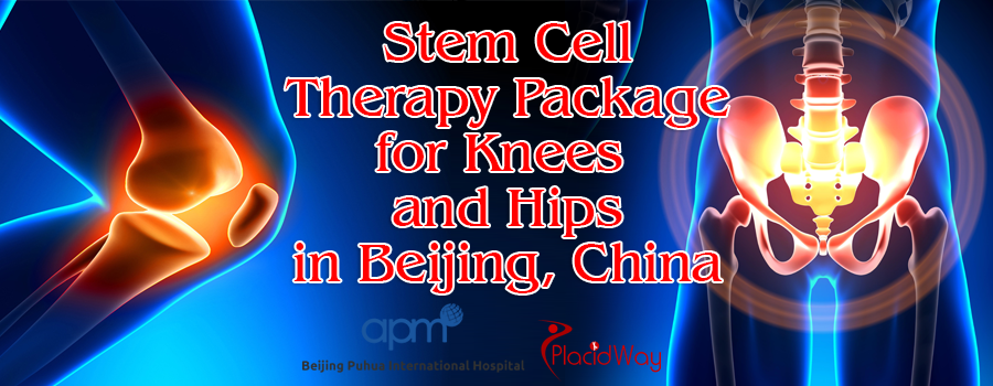 Stem Cell Therapy for Knees and Hips