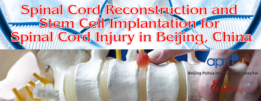 Spinal Cord Reconstruction and Stem Cell Implantation for Spinal Cord Injury in Beijing