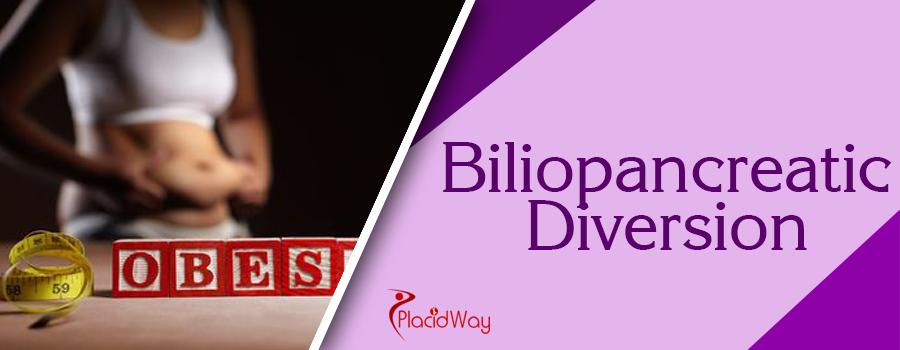 Biliopancreatic Diversion Abroad