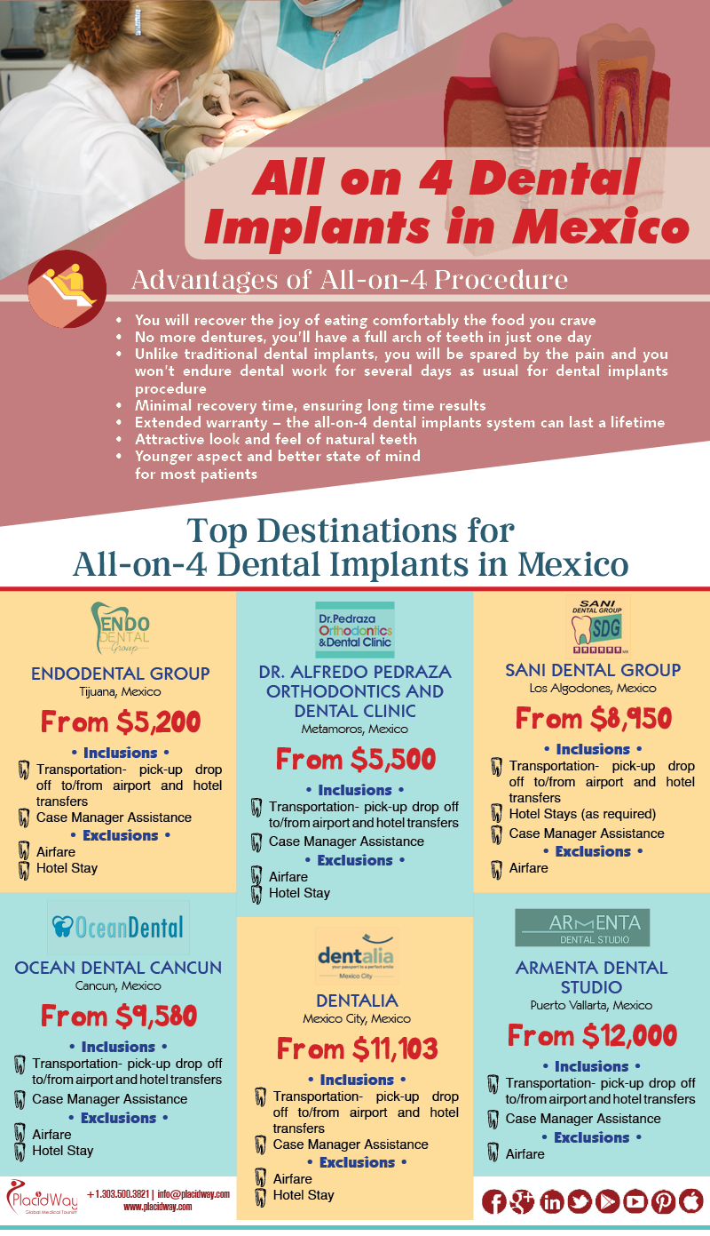 Infographics: All on 4 Dental Implants Mexico