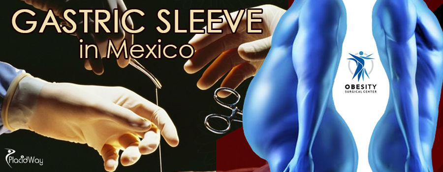 Gastric Sleeve Package in Mexico