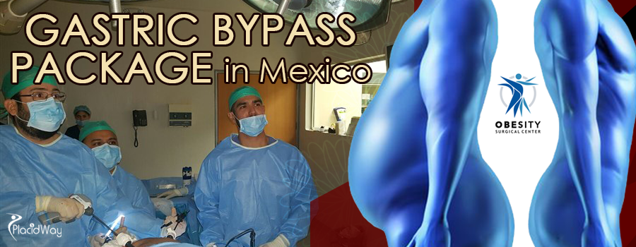 Gastric Bypass Package in Mexico