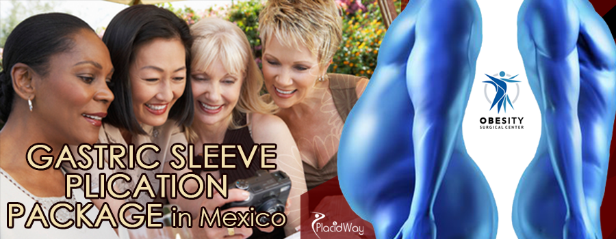 Gastric Sleeve Plication Surgery Package in Mexico