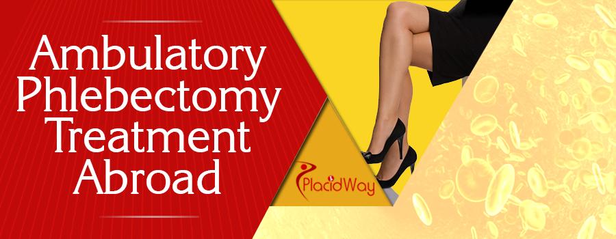 Ambulatory Phlebectomy Treatment Abroad
