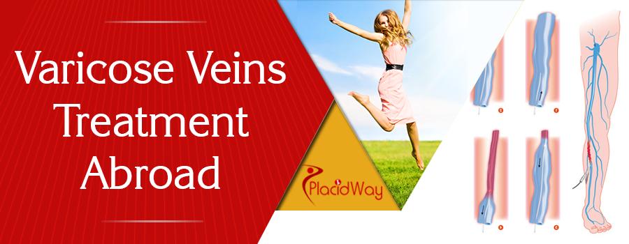 Varicose Veins Treatment Abroad