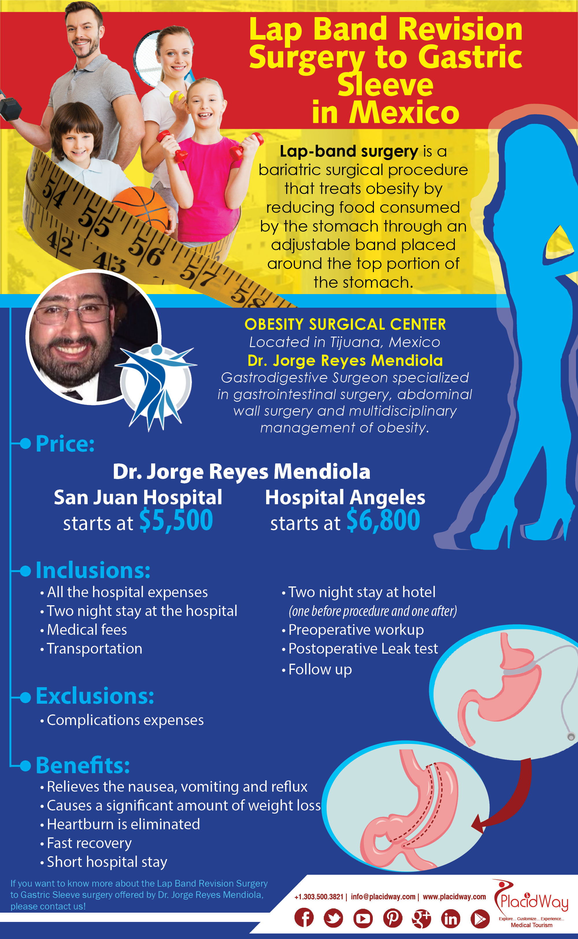 Infographics Lap Band Revision Surgery To Gastric Sleeve In Mexico