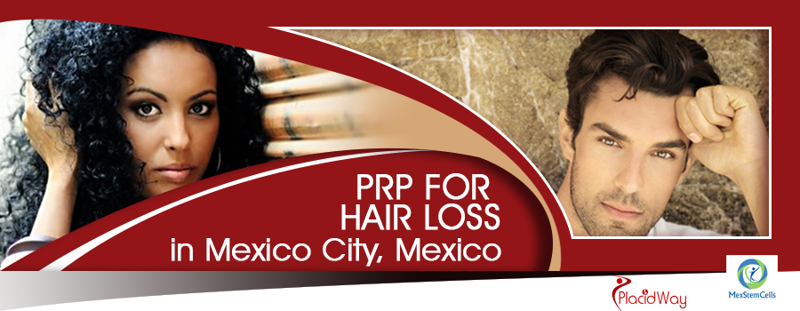 Platelet Rich Plasma for Hair Transplant in Mexico City, Mexico