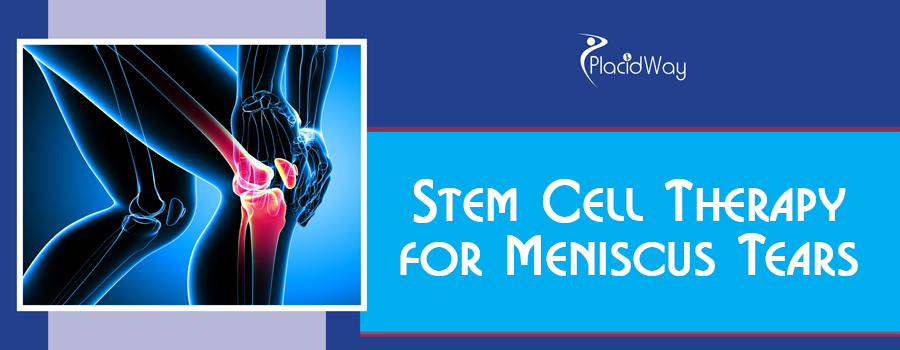 Stem Cell Therapy for a Meniscus Tear