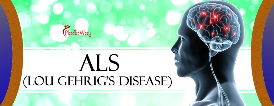 ALS - Lou Gehrig's Disease Treatment Abroad