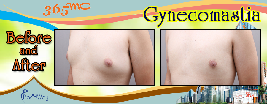 Before and After Gynecomastia Surgery in South Korea
