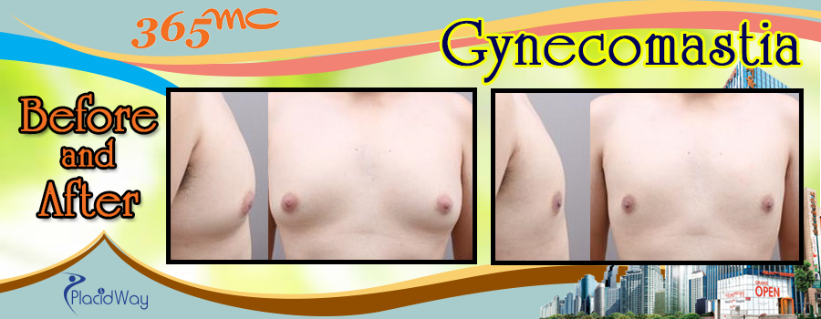 Patient Testimonial Gynecomastia in South Korea