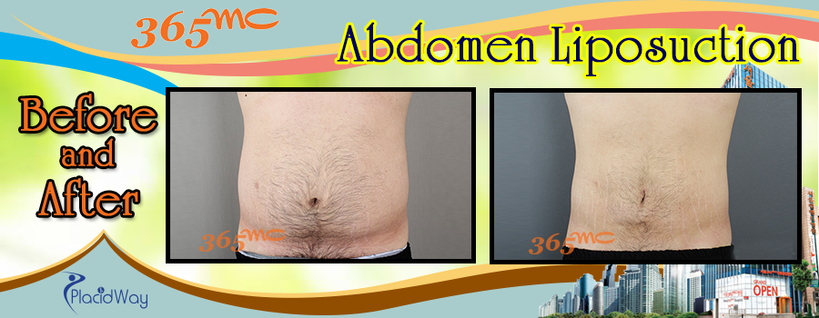 Before and After Abdomen Liposuction in South Korea