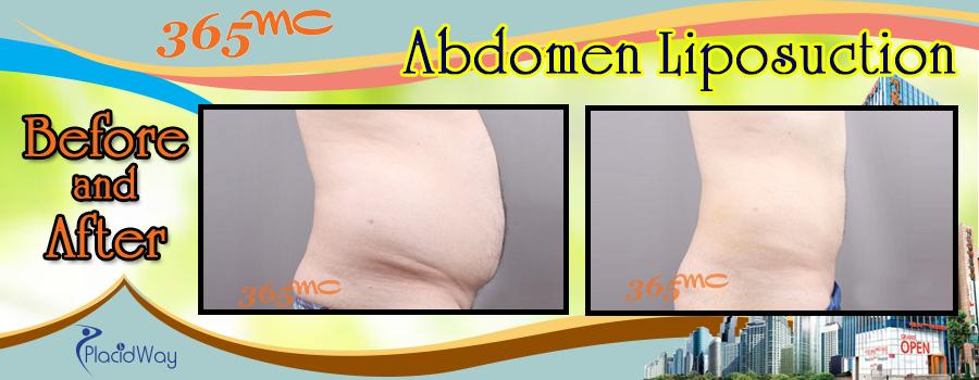 Patient Testi Before and After Abdomen Liposuction in South Korea