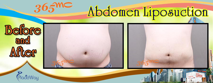 Before and After Procedure in Abdomen at 365mc South Korea