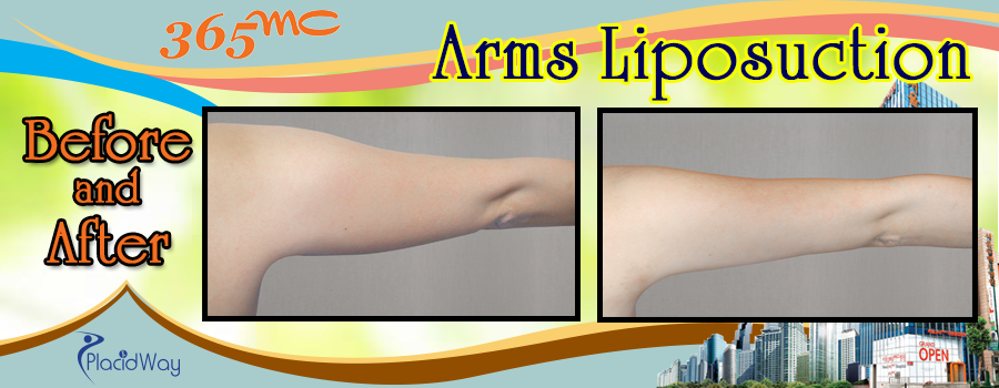 Before and After Arms Surgery in South Korea
