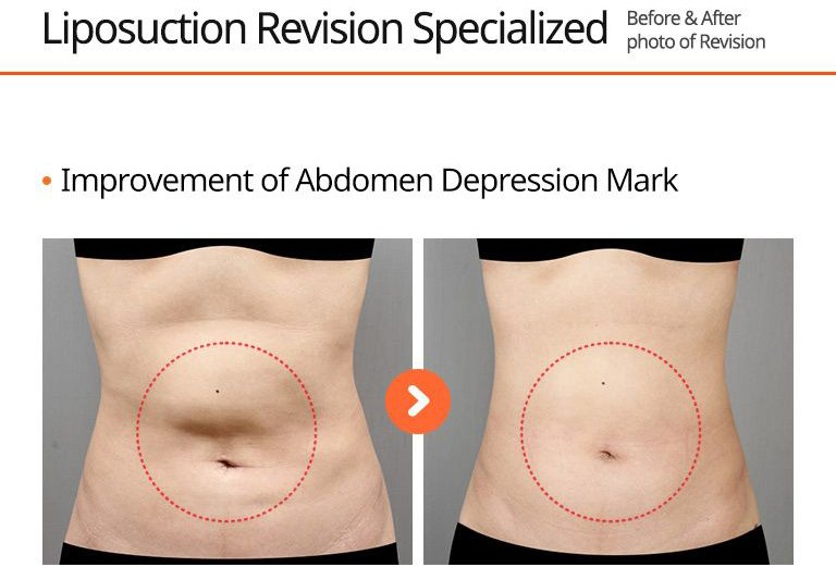 Liposuction Revision Specialized