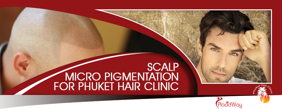 Micro Scalp Pigmentation in Phuket City, Thailand